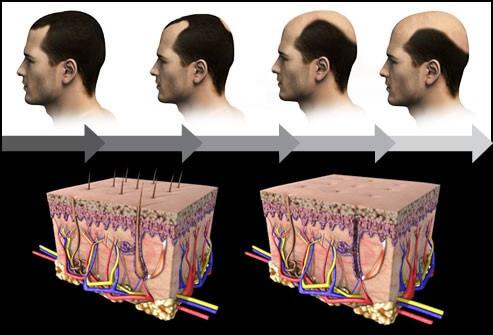 Причины выпадения волос у женщин после 40 лет